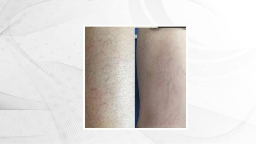 THREAD VEIN/SPIDER VEIN BEFORE AND AFTER